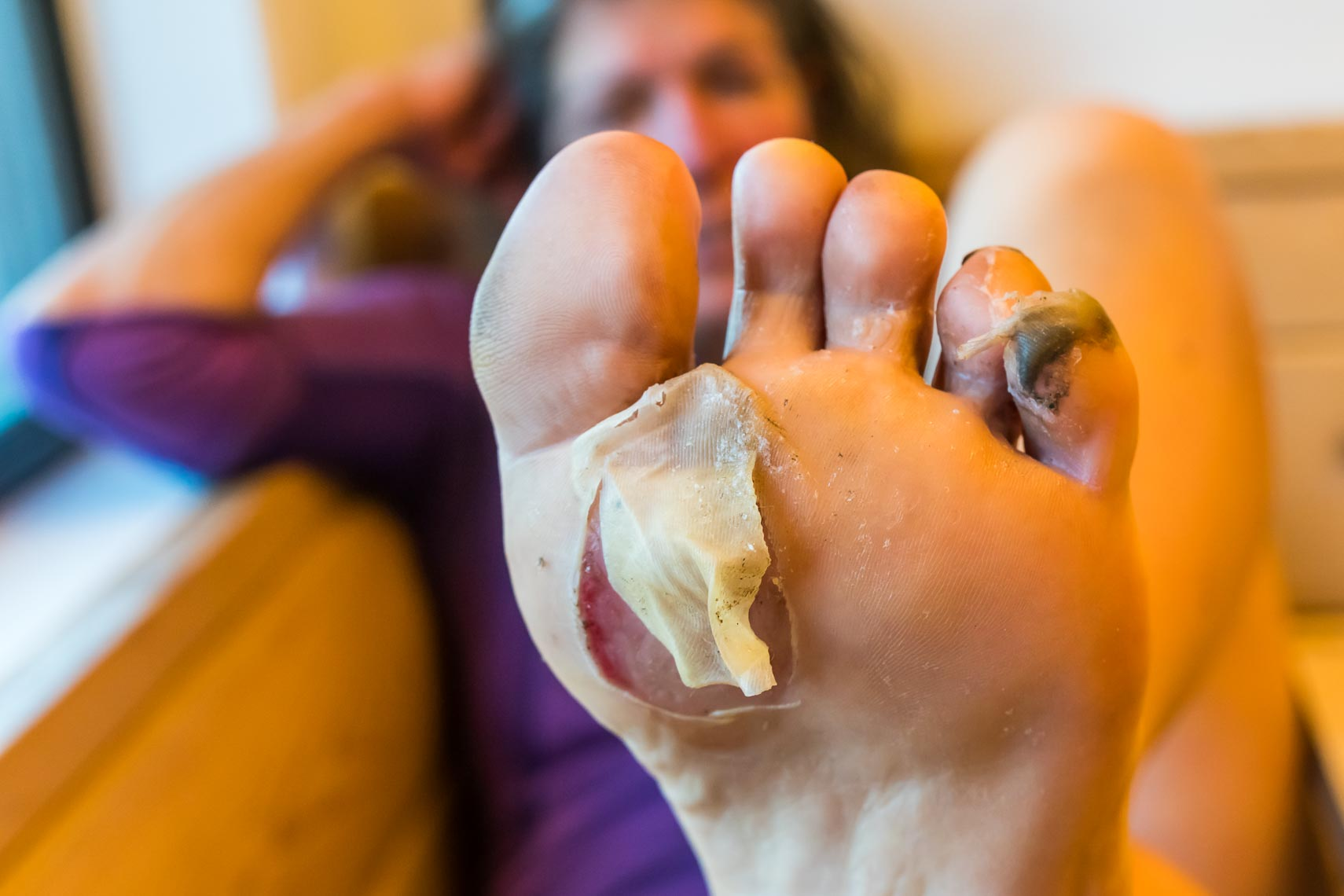 Pacific Crest Trail Injury - Blisters | Michael DeYoung